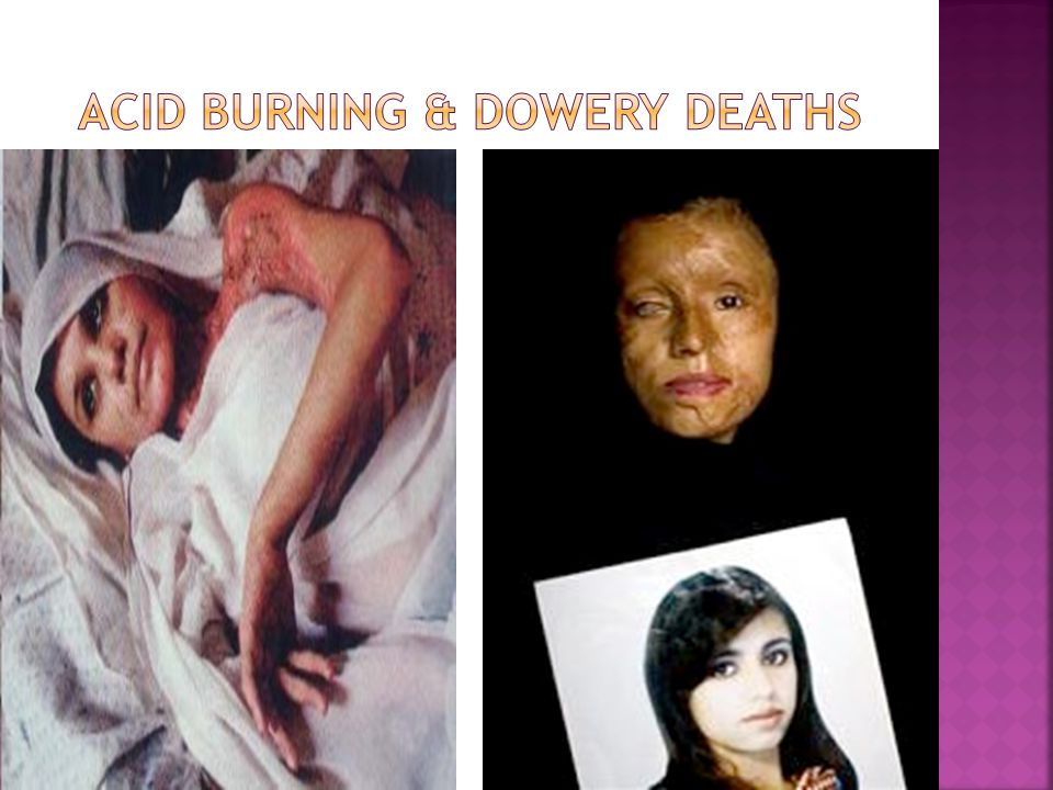 Acid burning & Dowery deaths
