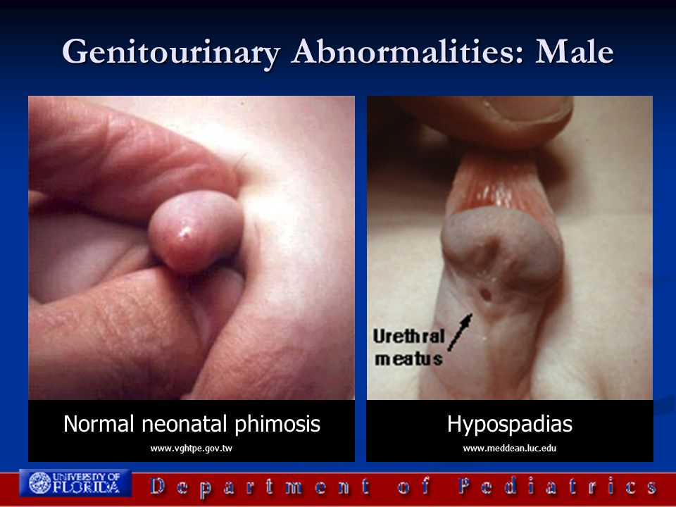 Genitourinary Abnormalities: Male