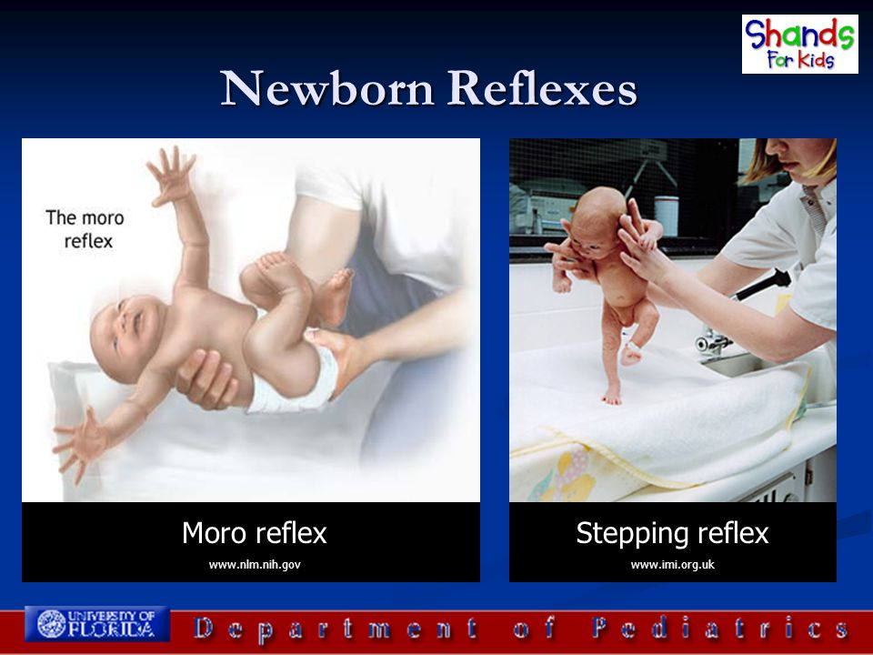 Newborn Reflexes Moro reflex Stepping reflex www.nlm.nih.gov