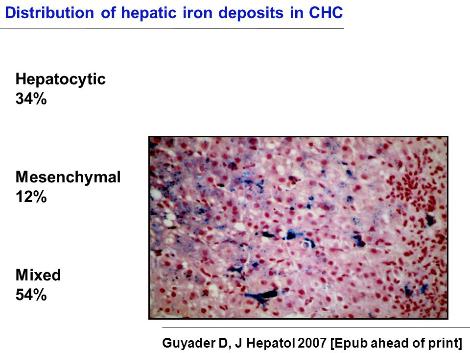Distribution of hepatic iron deposits in CHC