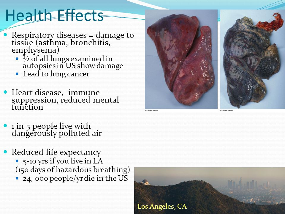 Health Effects Respiratory diseases = damage to tissue (asthma, bronchitis, emphysema) ½ of all lungs examined in autopsies in US show damage.