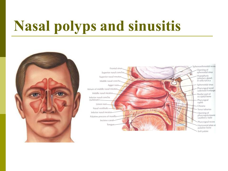 Nasal polyps and sinusitis