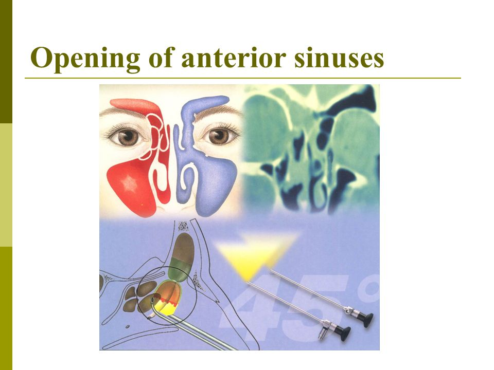 Opening of anterior sinuses