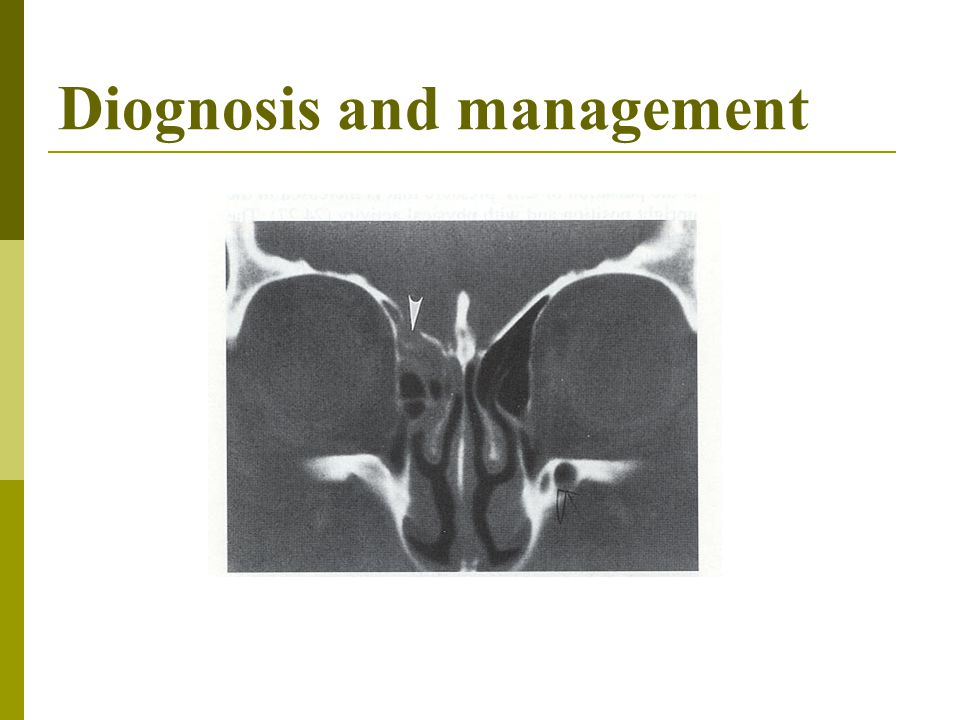 Diognosis and management