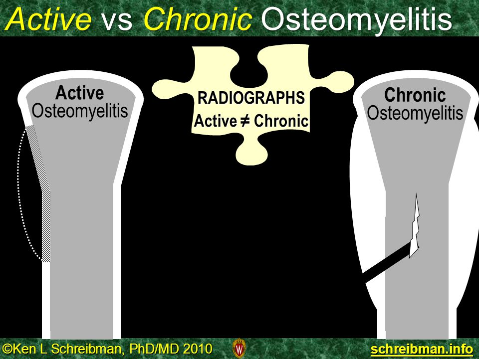 Active vs Chronic Osteomyelitis