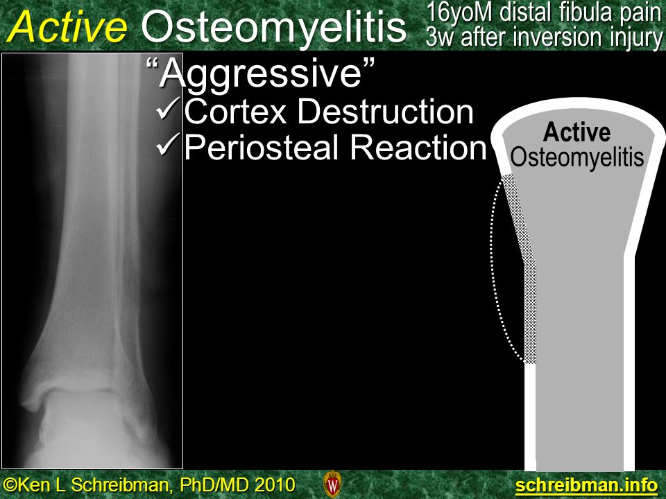 Active Osteomyelitis Aggressive Cortex Destruction