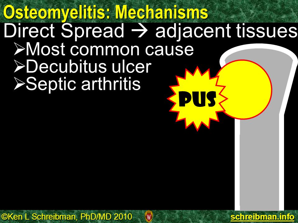 Osteomyelitis: Mechanisms