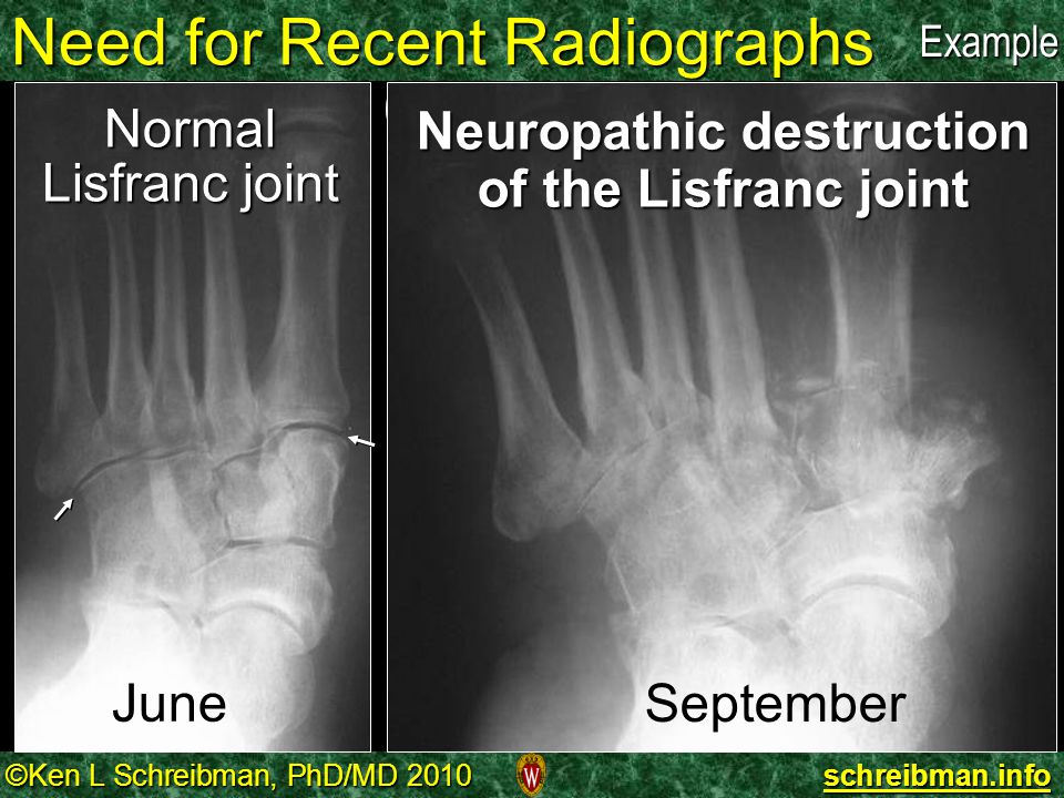 Need for Recent Radiographs