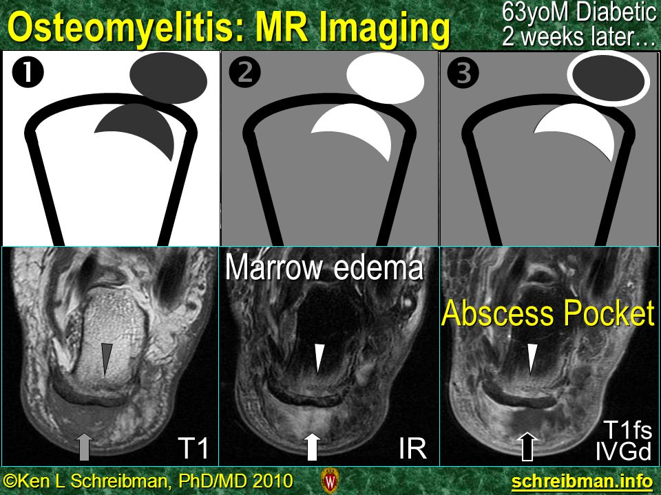 Osteomyelitis: MR Imaging