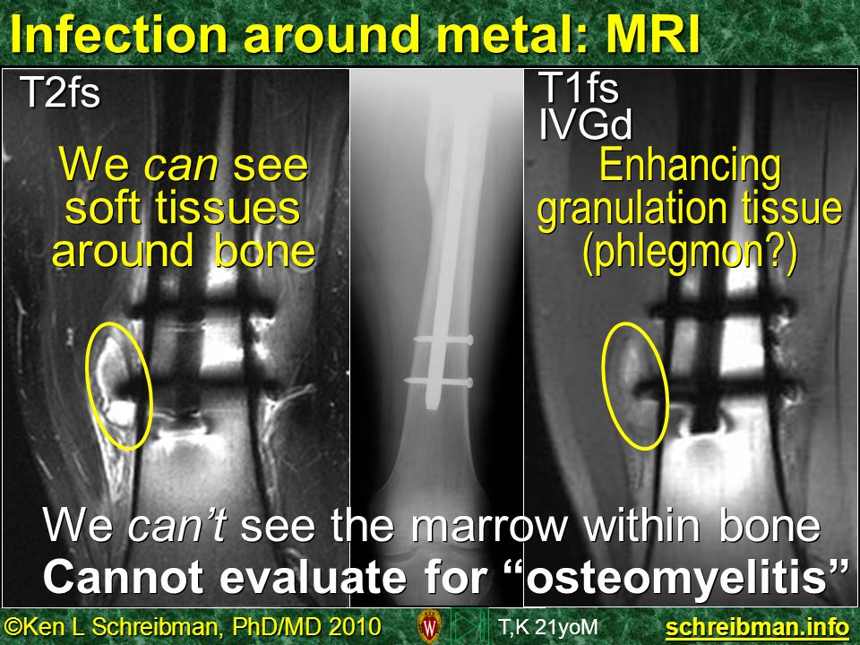 Infection around metal: MRI