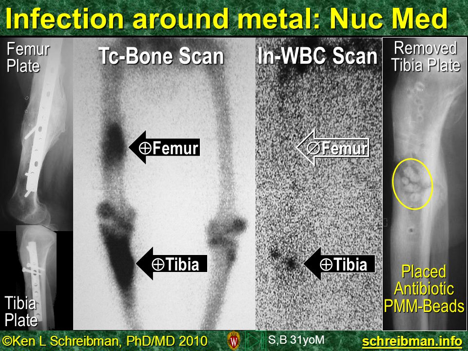 Infection around metal: Nuc Med