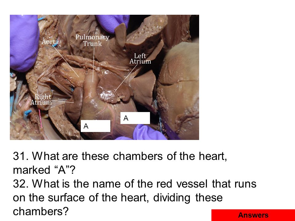 31. What are these chambers of the heart, marked A