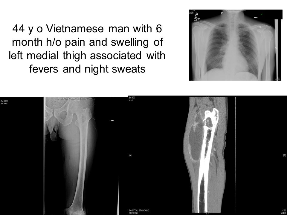 44 y o Vietnamese man with 6 month h/o pain and swelling of left medial thigh associated with fevers and night sweats