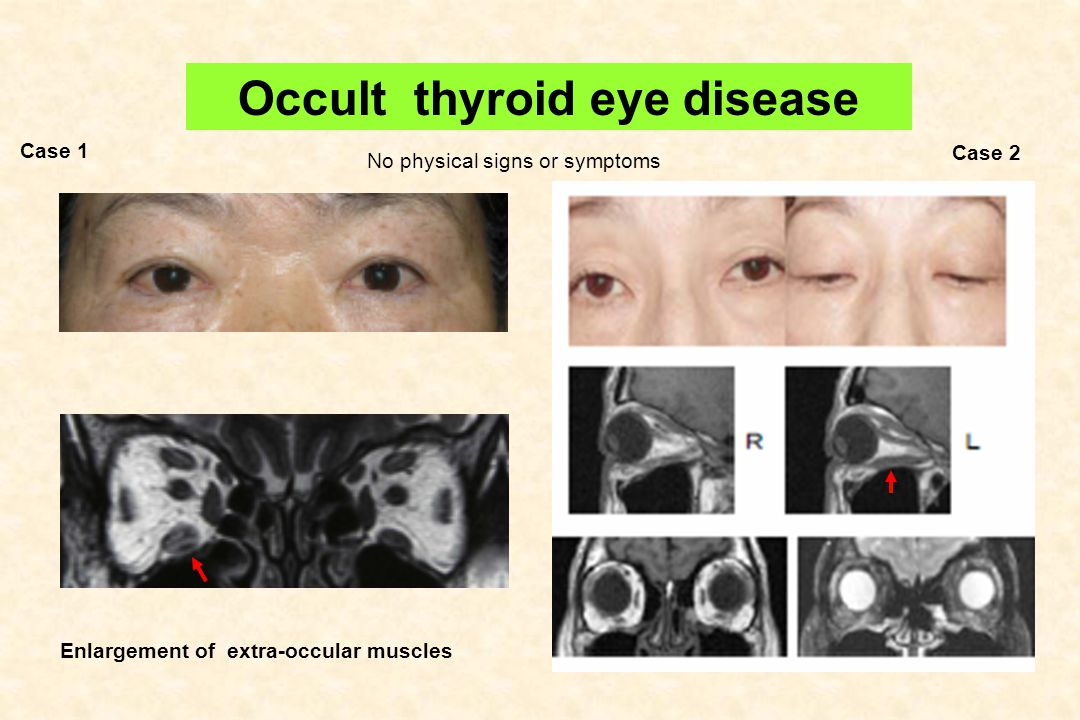 Occult Thyroid Eye Disease
