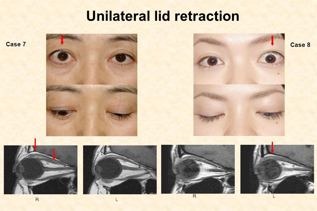 Unilateral lid retraction