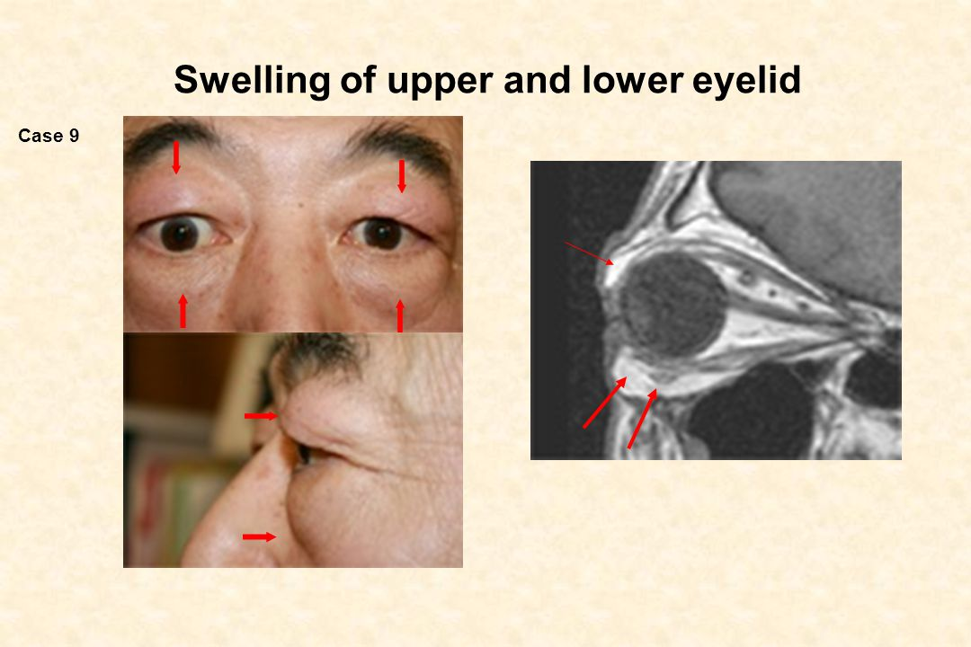 Swelling of upper and lower eyelid
