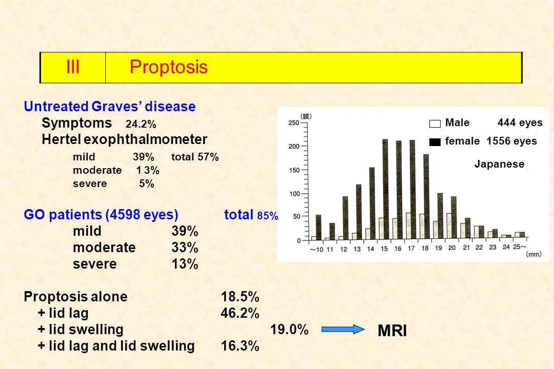 III Proptosis MRI Untreated Graves' disease Symptoms 24.2%