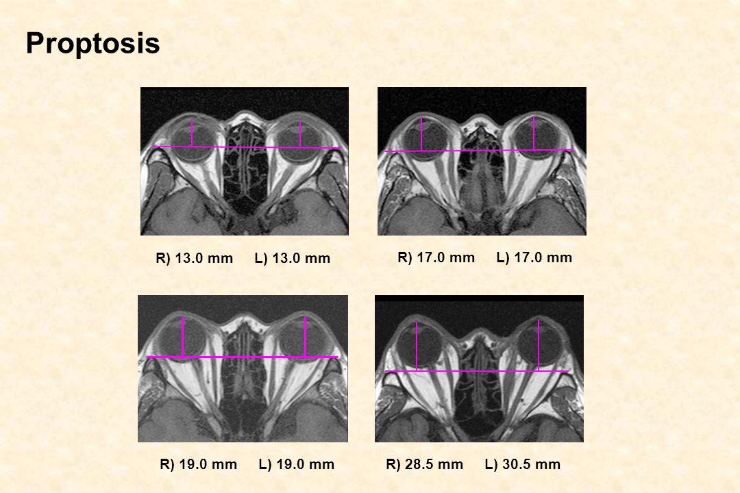 Proptosis R) 13.0 mm L) 13.0 mm R) 17.0 mm L) 17.0 mm