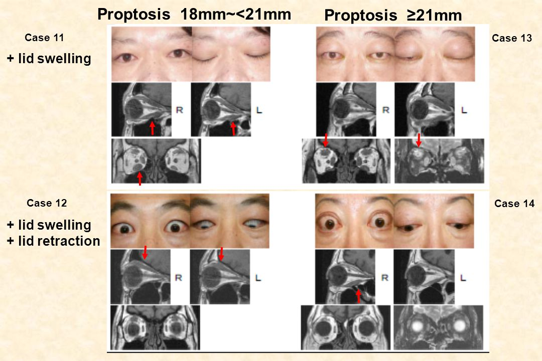 Proptosis 18mm~<21mm Proptosis ≥21mm + lid swelling + lid swelling