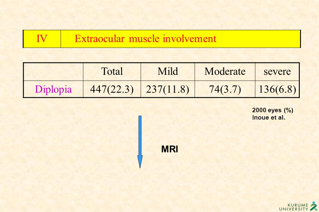 Extraocular muscle involvement