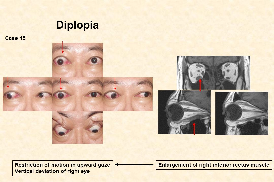 Diplopia Case 15 Restriction of motion in upward gaze
