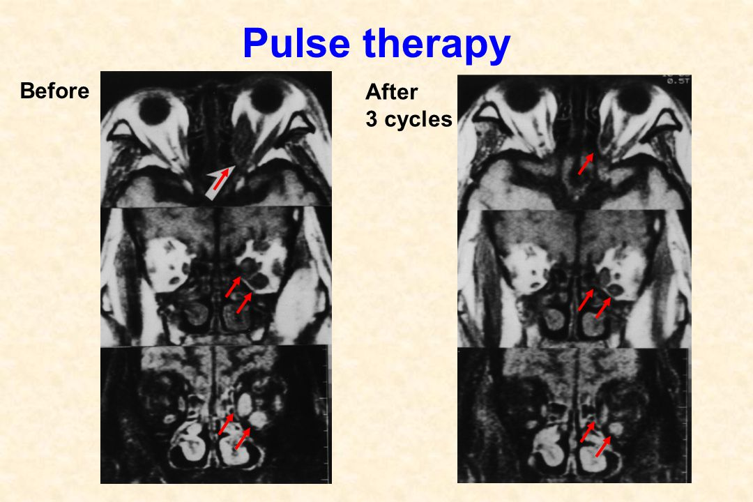 Pulse therapy Before After 3 cycles