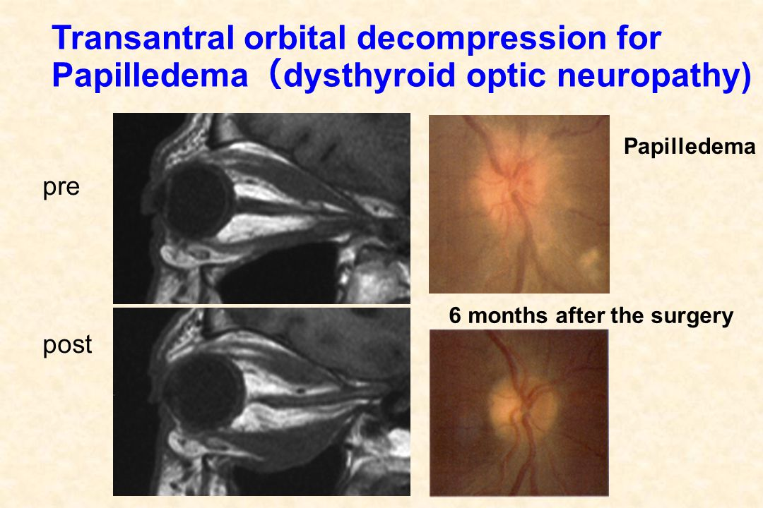 Transantral orbital decompression for