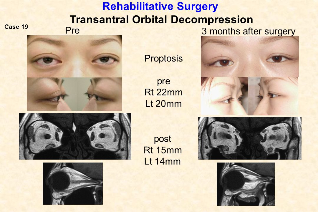 Rehabilitative Surgery Transantral Orbital Decompression