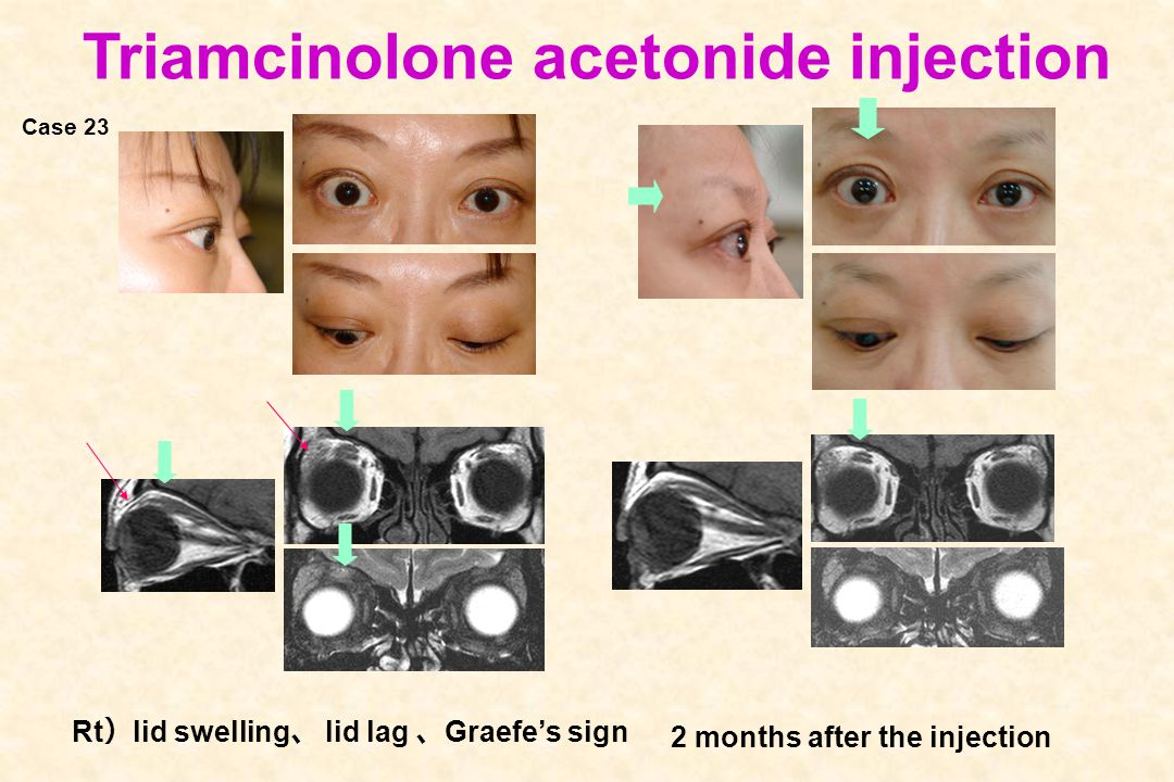 Triamcinolone acetonide injection