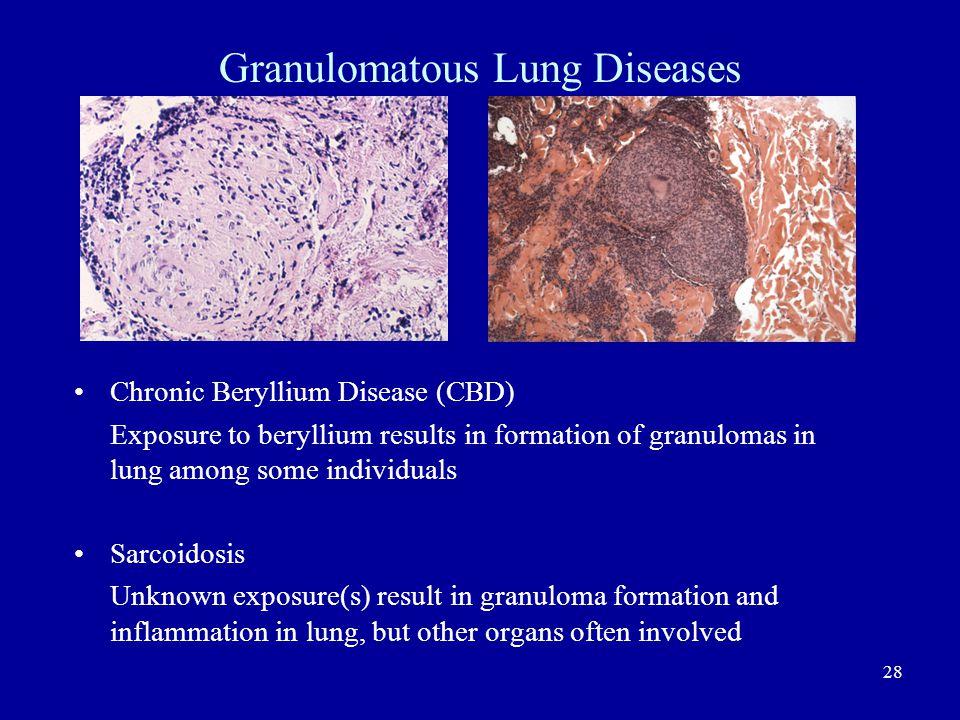 Granulomatous Lung Diseases