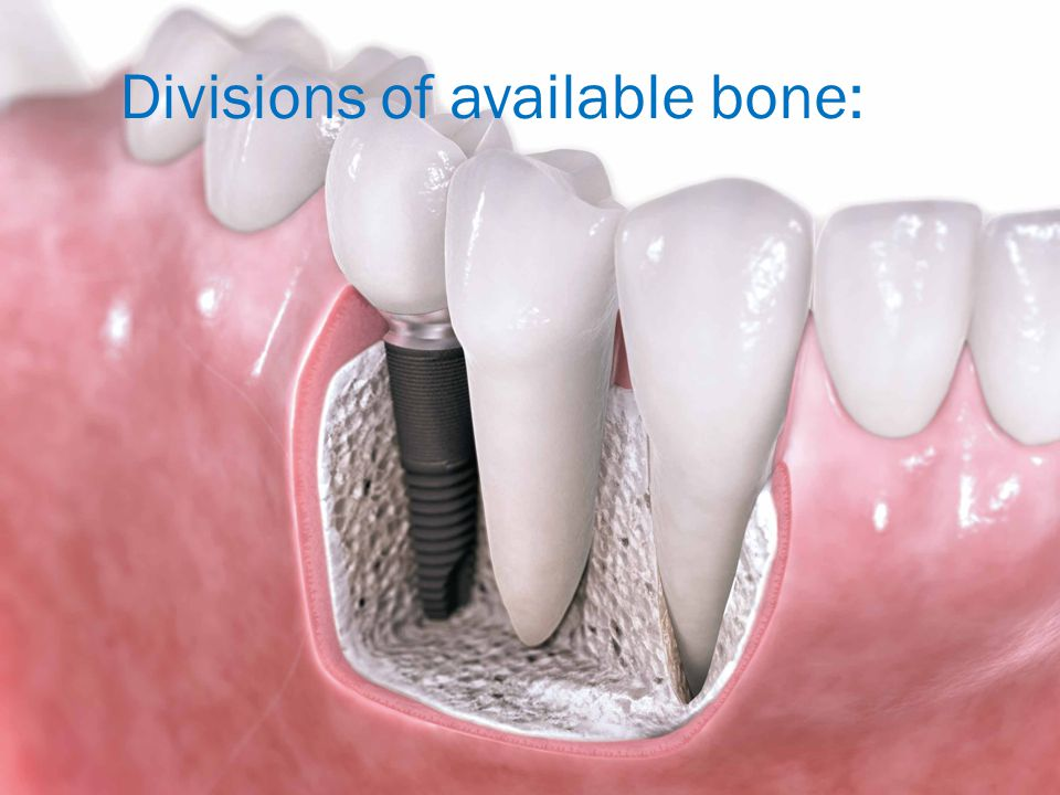 Divisions of available bone: