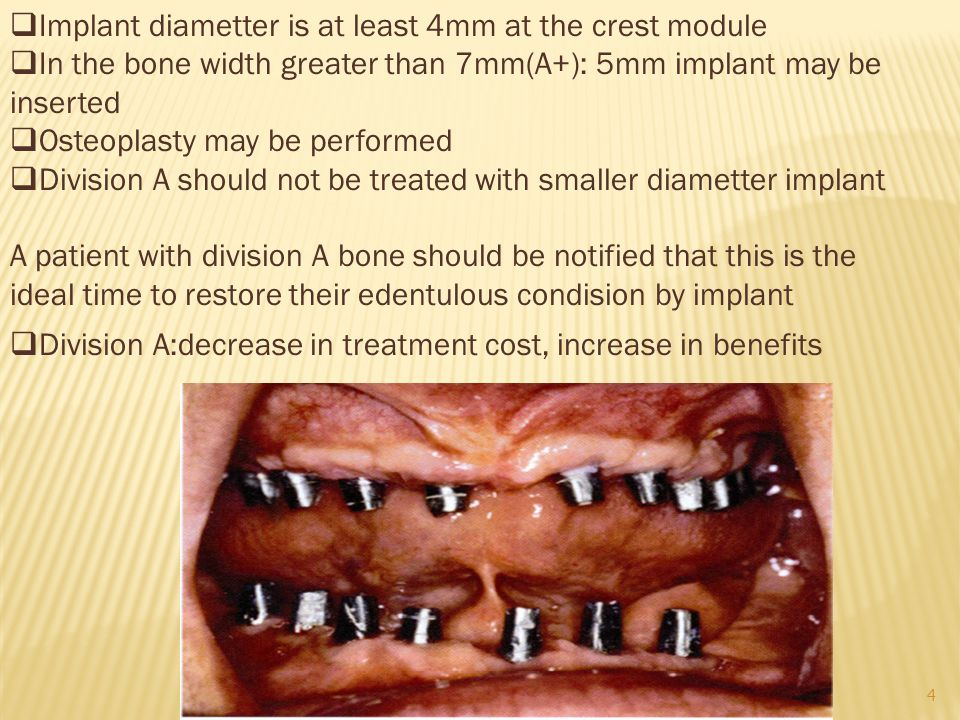 Implant diametter is at least 4mm at the crest module