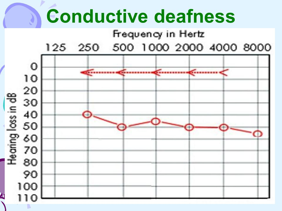Conductive deafness