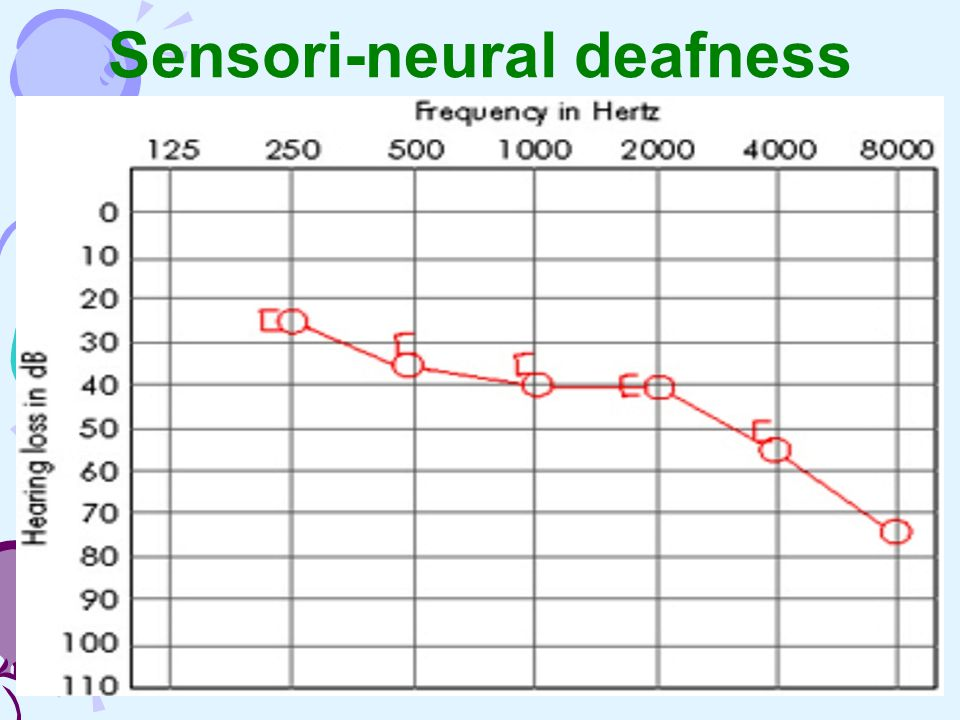 sensori neural deafness essay The difference between deaf and deaf is that the lowercase deaf is used when referring the audio-logical state of  essays deafness  sensorineural hearing.