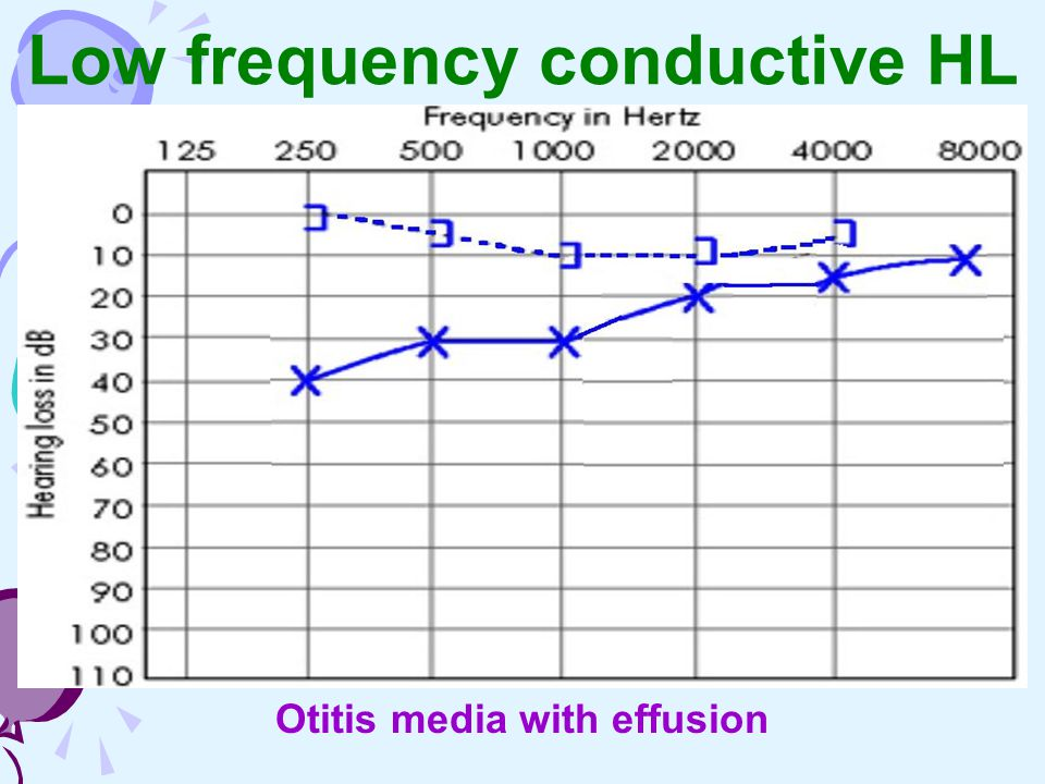 Low frequency conductive HL