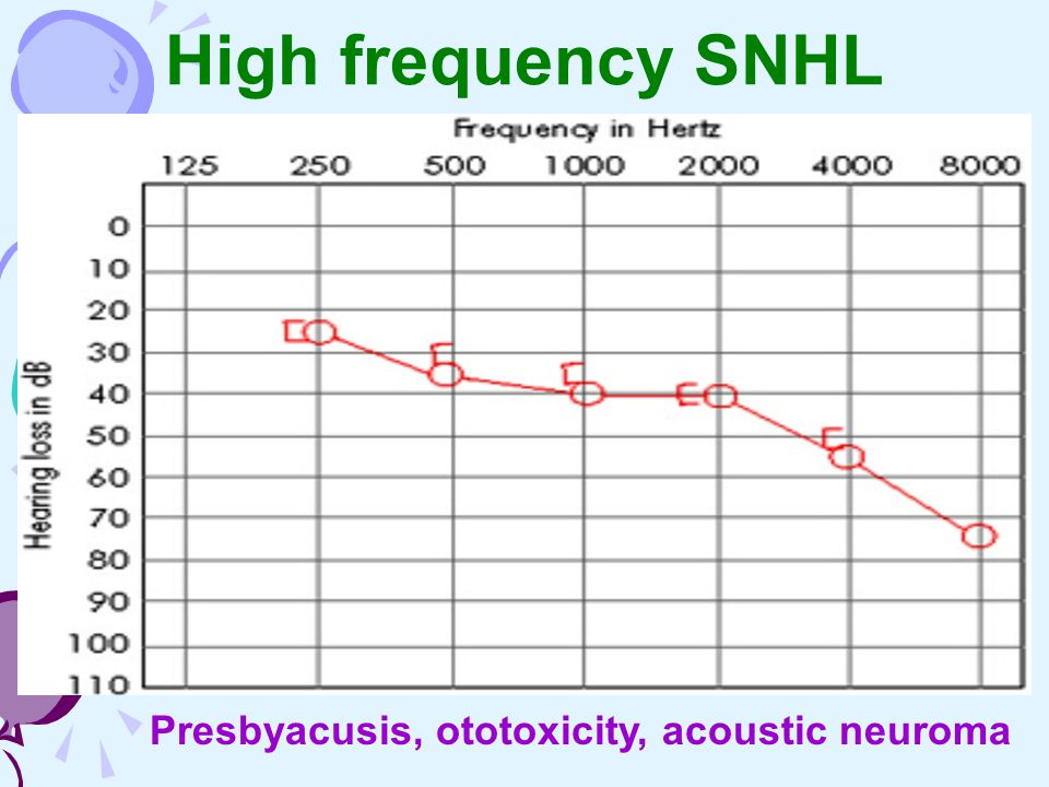 High frequency SNHL Presbyacusis, ototoxicity, acoustic neuroma