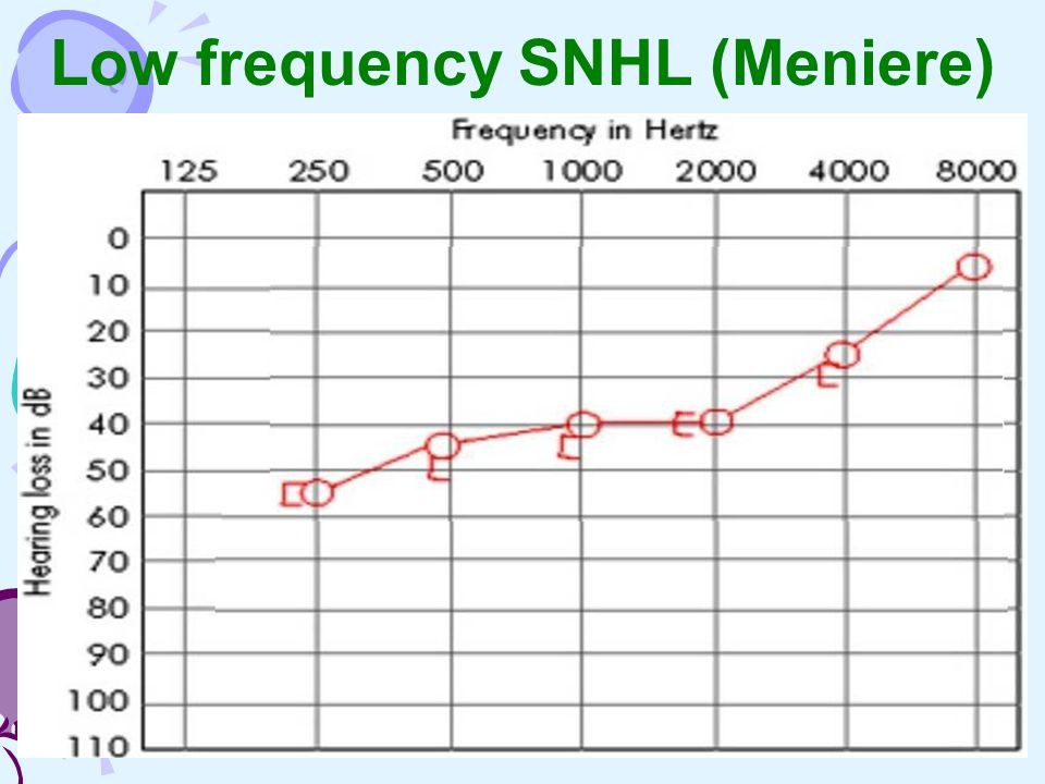 Low frequency SNHL (Meniere)