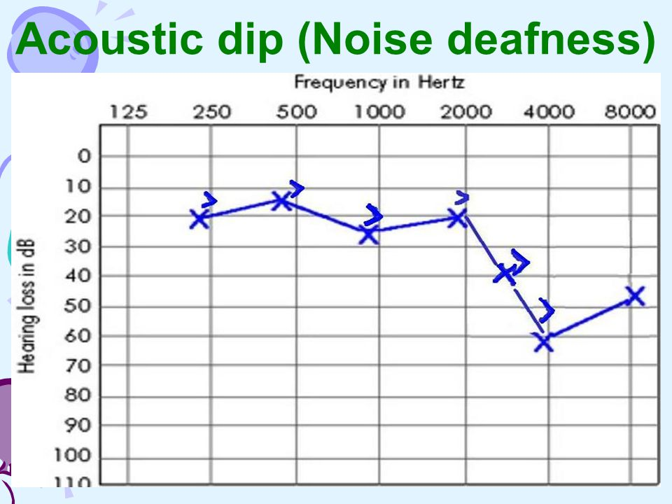Acoustic dip (Noise deafness)