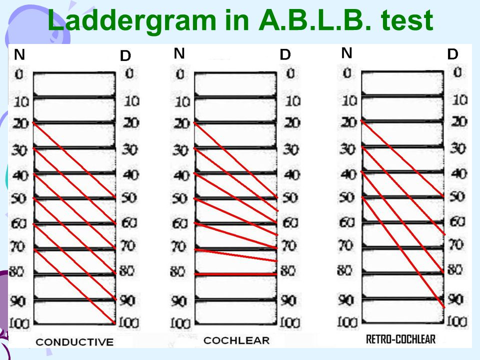 Laddergram in A.B.L.B. test