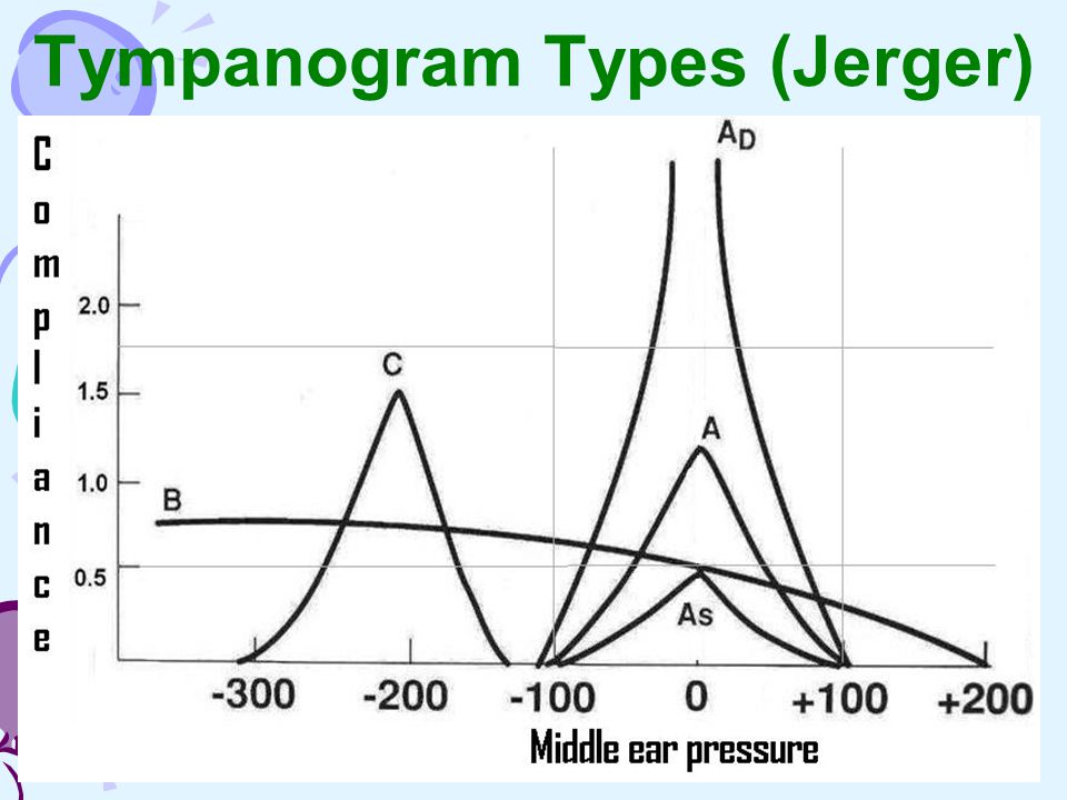 Tympanogram Types (Jerger)