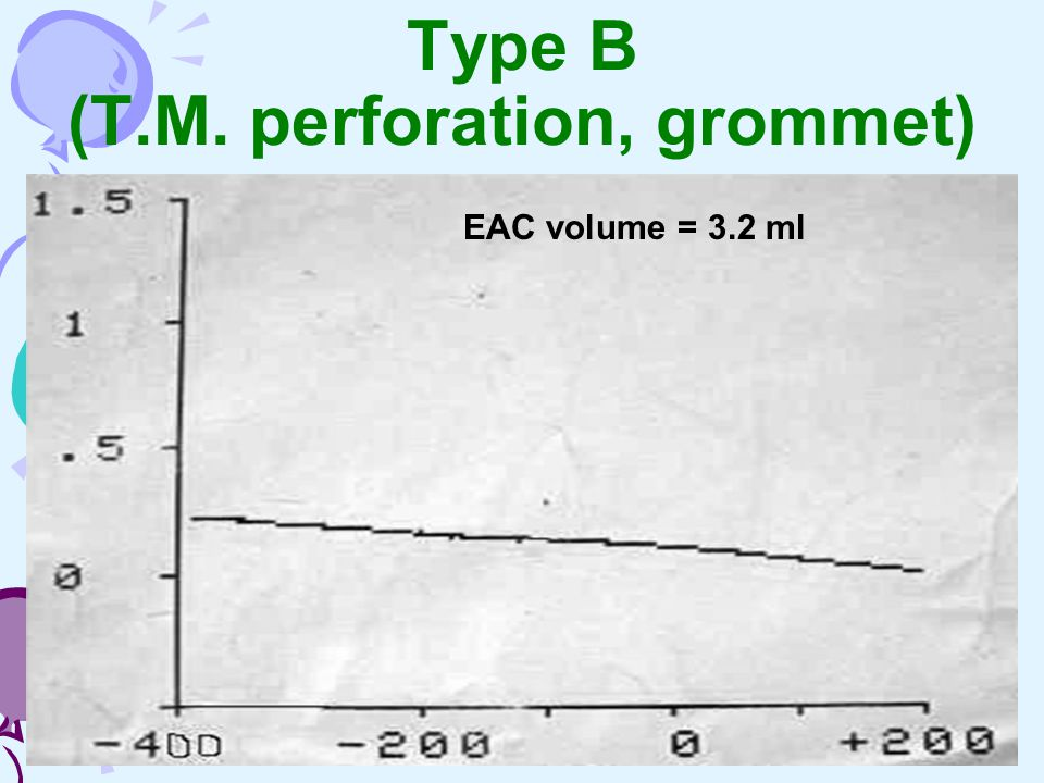 Type B (T.M. perforation, grommet)