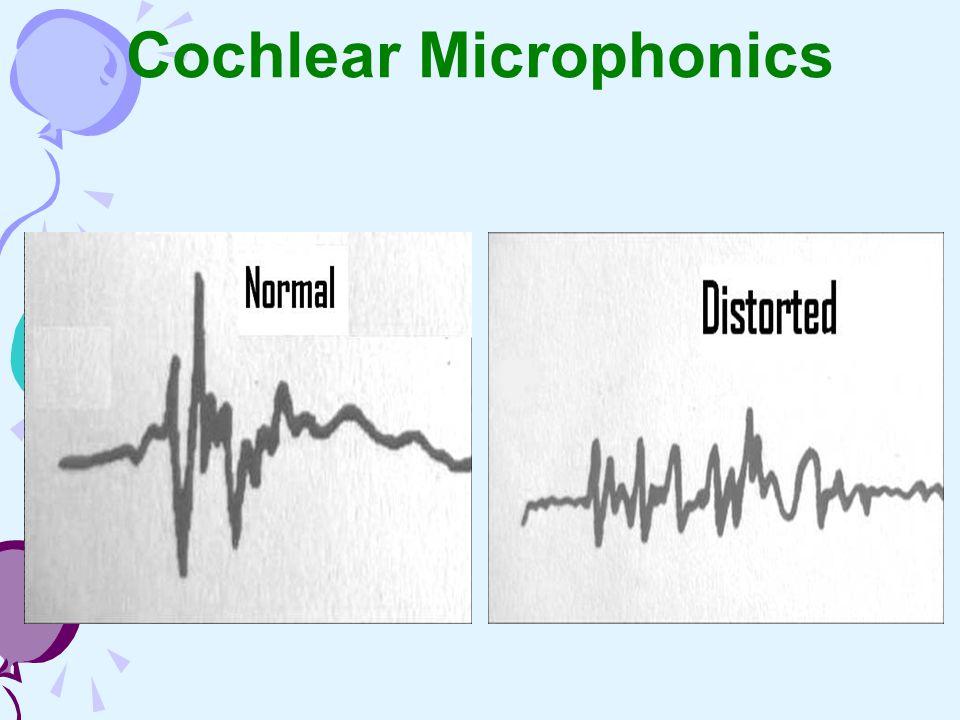 Cochlear Microphonics