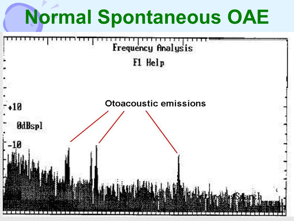 Normal Spontaneous OAE