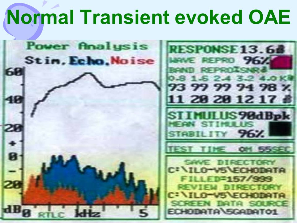 Normal Transient evoked OAE