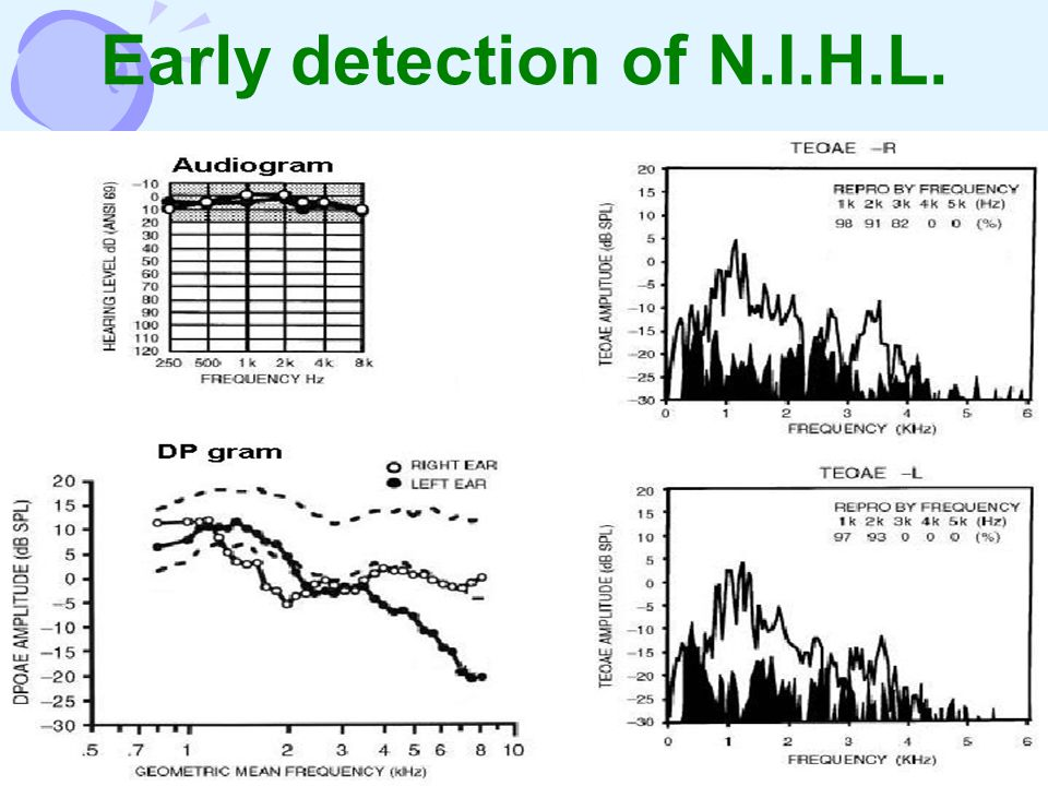 Early detection of N.I.H.L.