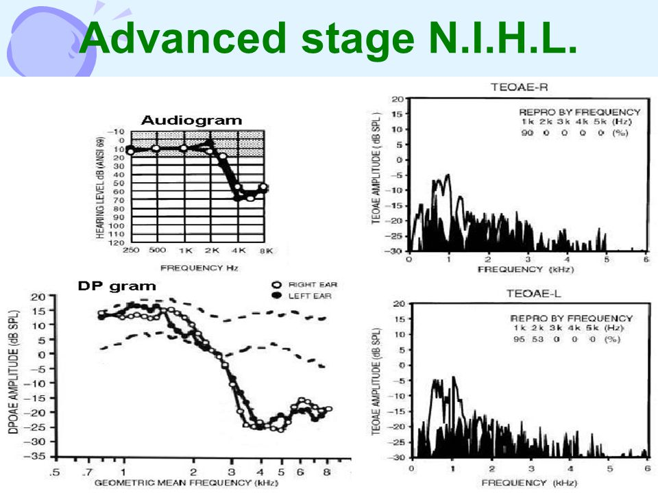 Advanced stage N.I.H.L.