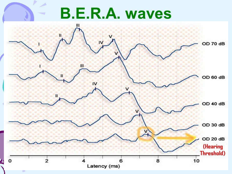 B.E.R.A. waves