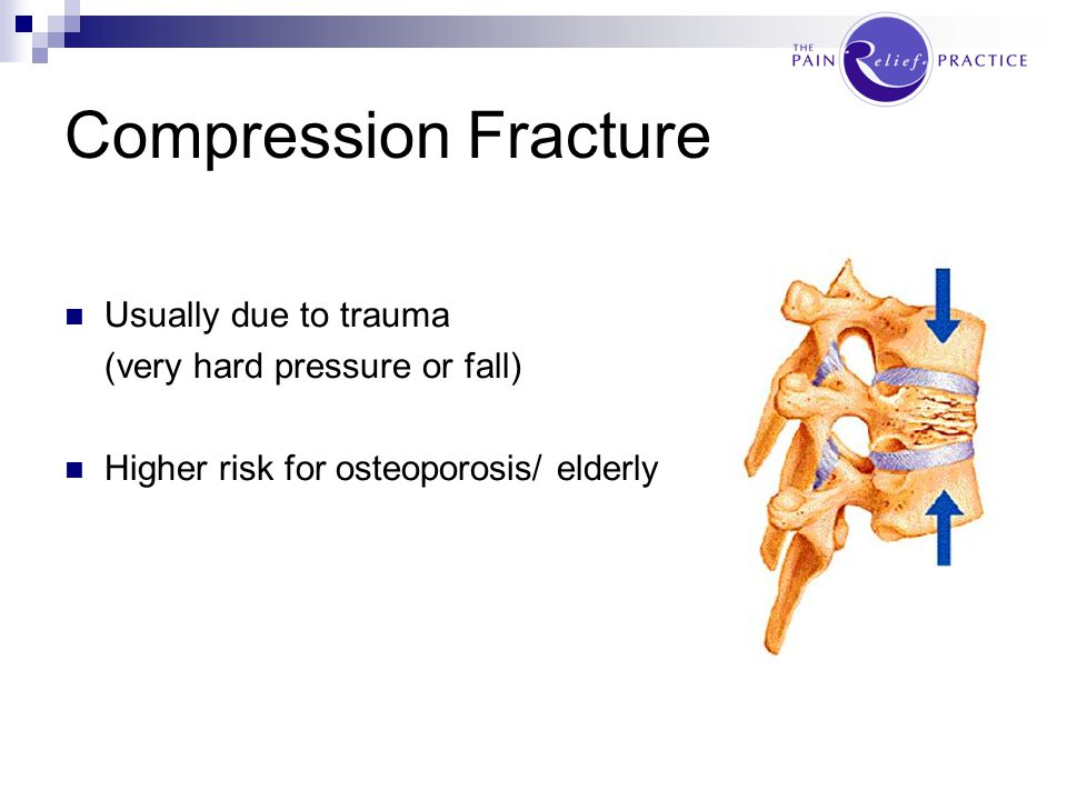 Compression Fracture Usually due to trauma