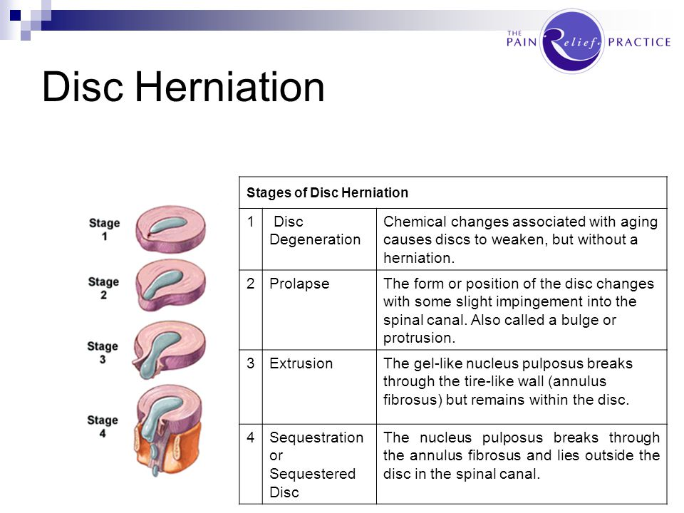 Disc Herniation 1 Disc Degeneration