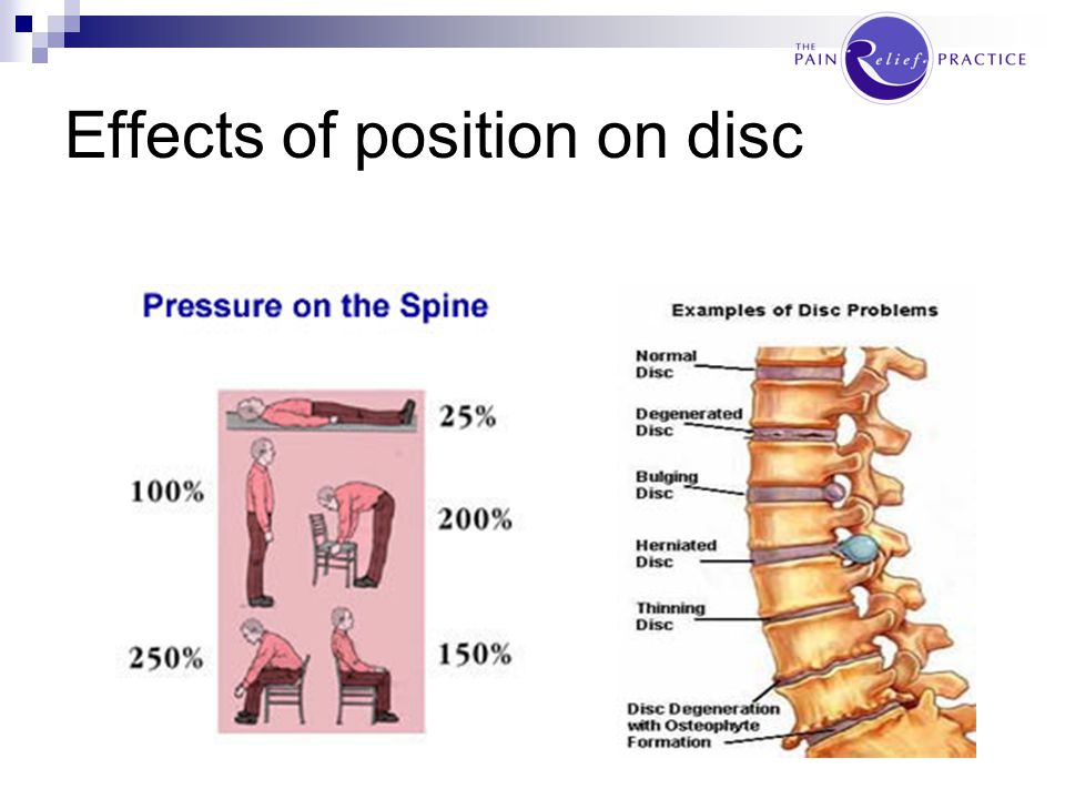 Effects of position on disc